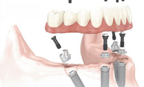 Implantology and All-on-4